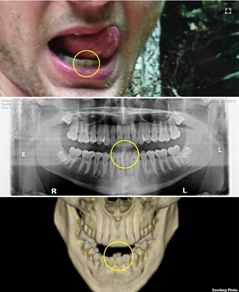 20180302オットー・ワームビアさんの歯
